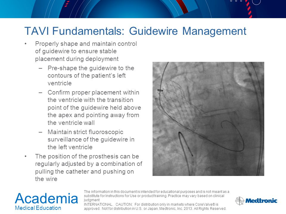 TAVI Fundamentals: Guidewire Management