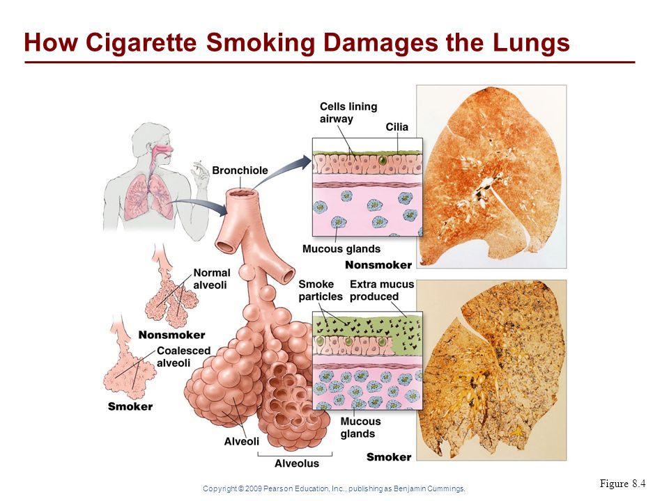 How Cigarette Smoking Damages the Lungs