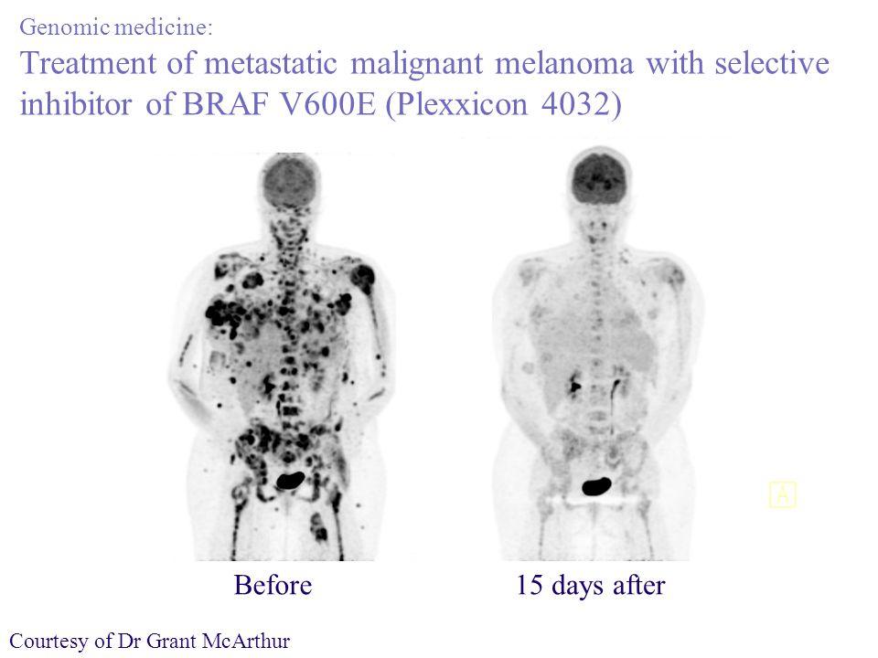 Genomic medicine: Treatment of metastatic malignant melanoma with selective inhibitor of BRAF V600E (Plexxicon 4032)