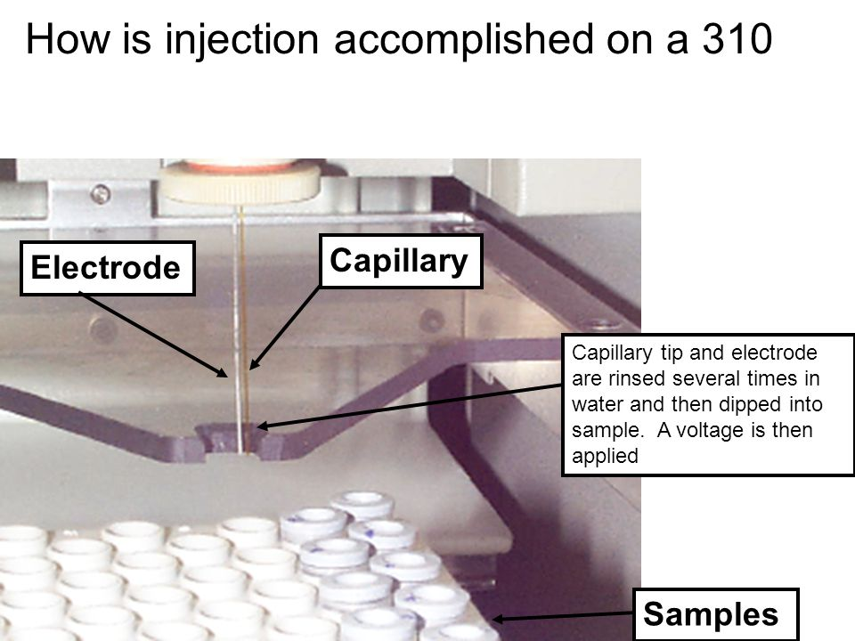 How is injection accomplished on a 310