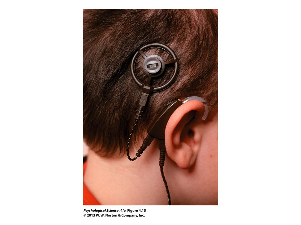 FIGURE 4.15 Cochlear Implants
