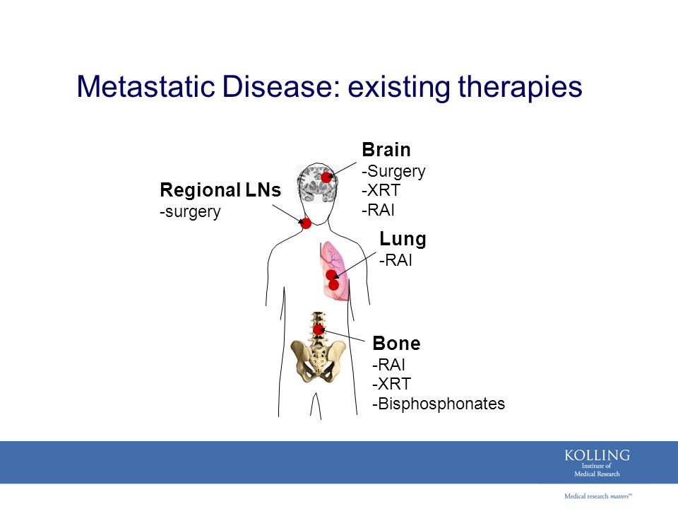 Metastatic Disease: existing therapies