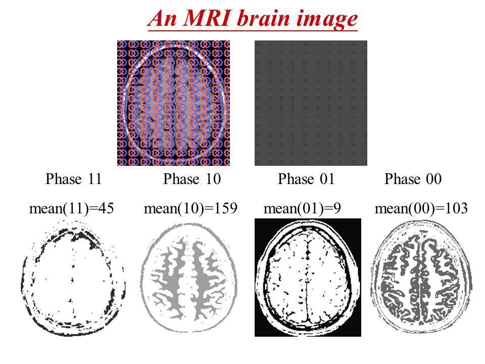 An MRI brain image Phase 11 Phase 10 Phase 01 Phase 00