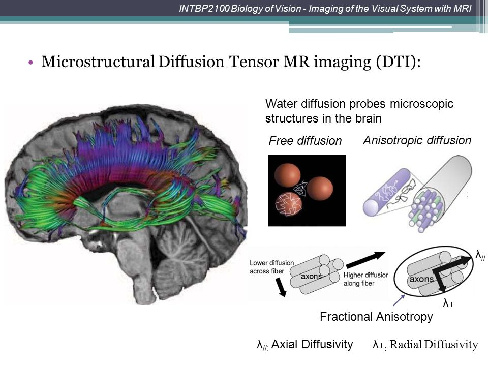 Microstructural Diffusion Tensor MR imaging (DTI):