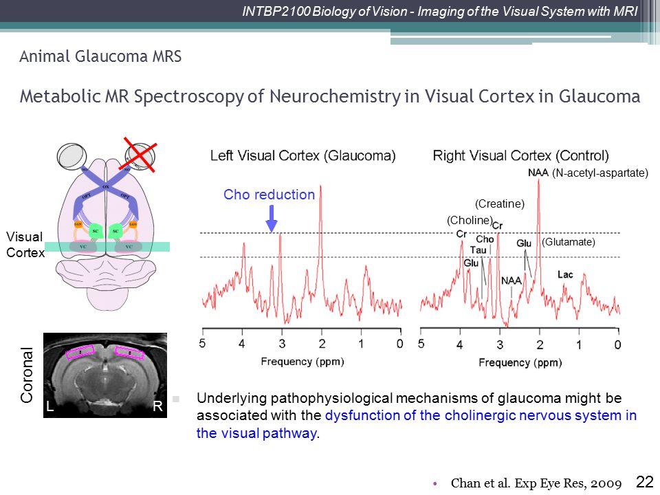 Metabolic MR Spectroscopy of Neurochemistry in Visual Cortex in Glaucoma