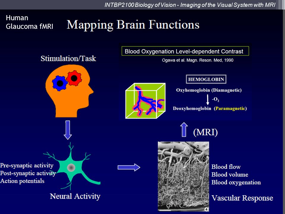 Human Glaucoma fMRI