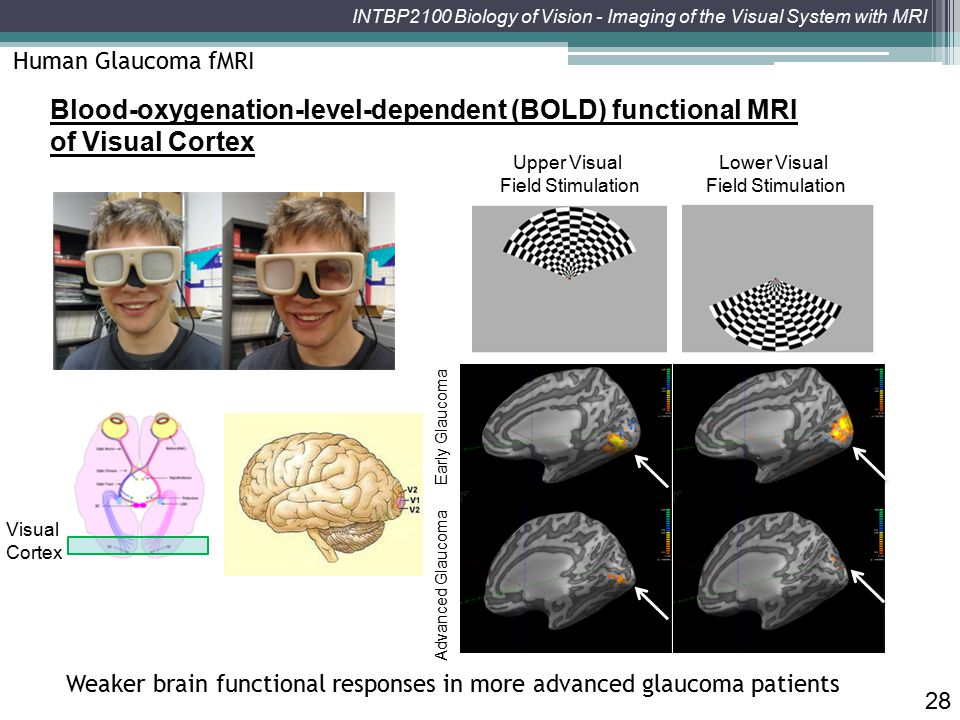 Human Glaucoma fMRI Blood-oxygenation-level-dependent (BOLD) functional MRI of Visual Cortex. Upper Visual.