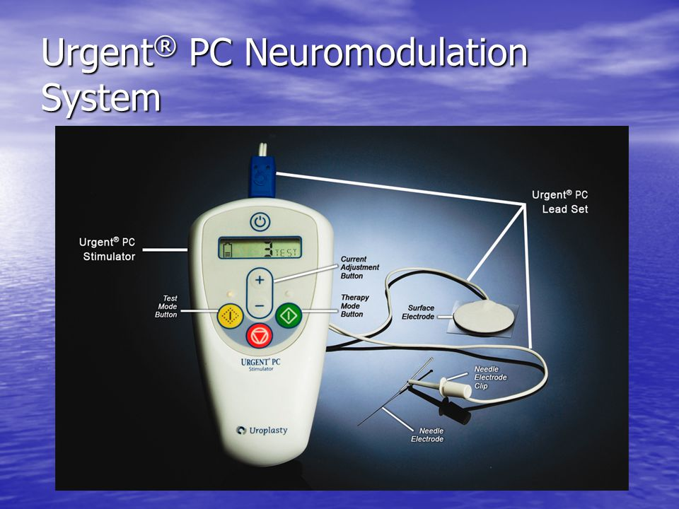 Urgent® PC Neuromodulation System