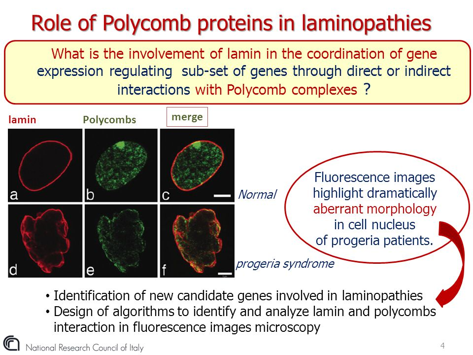 Role of Polycomb proteins in laminopathies