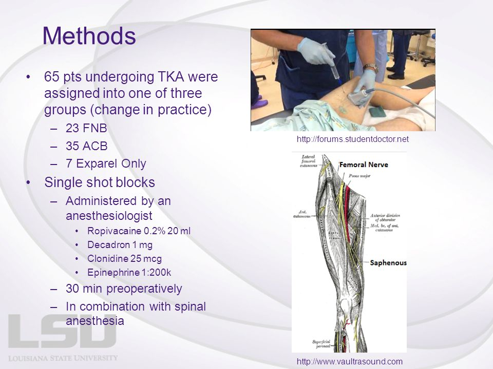 Methods 65 pts undergoing TKA were assigned into one of three groups (change in practice) 23 FNB. 35 ACB.