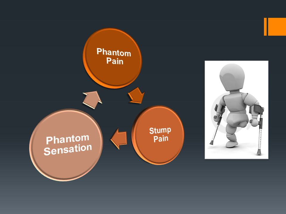 Phantom Pain Stump Pain Phantom Sensation