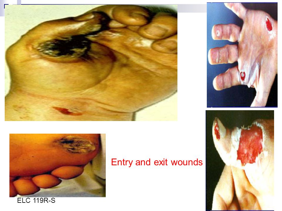 Entry and exit wounds