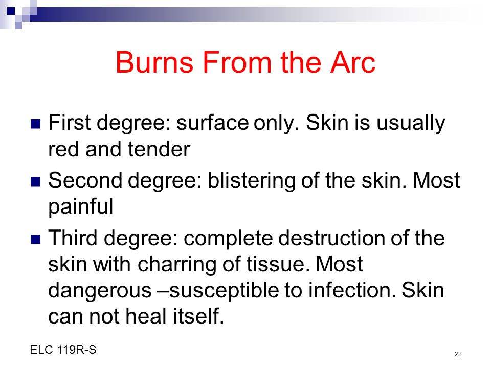Burns From the Arc First degree: surface only. Skin is usually red and tender. Second degree: blistering of the skin. Most painful.