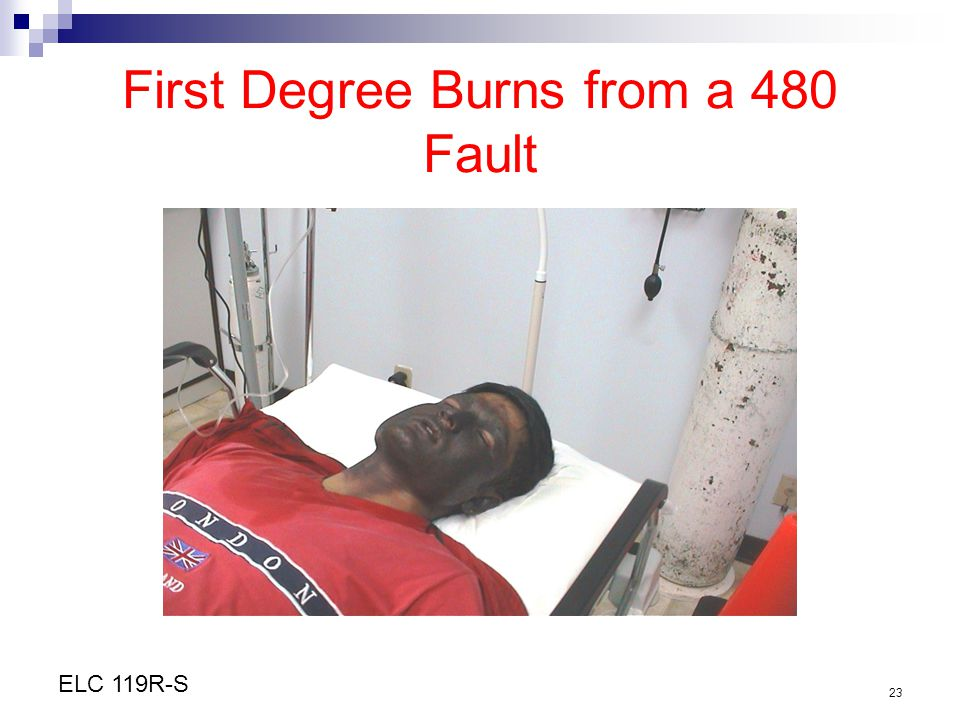 First Degree Burns from a 480 Fault