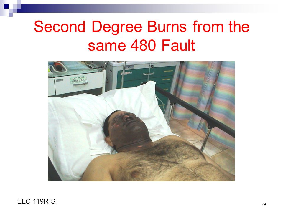 Second Degree Burns from the same 480 Fault