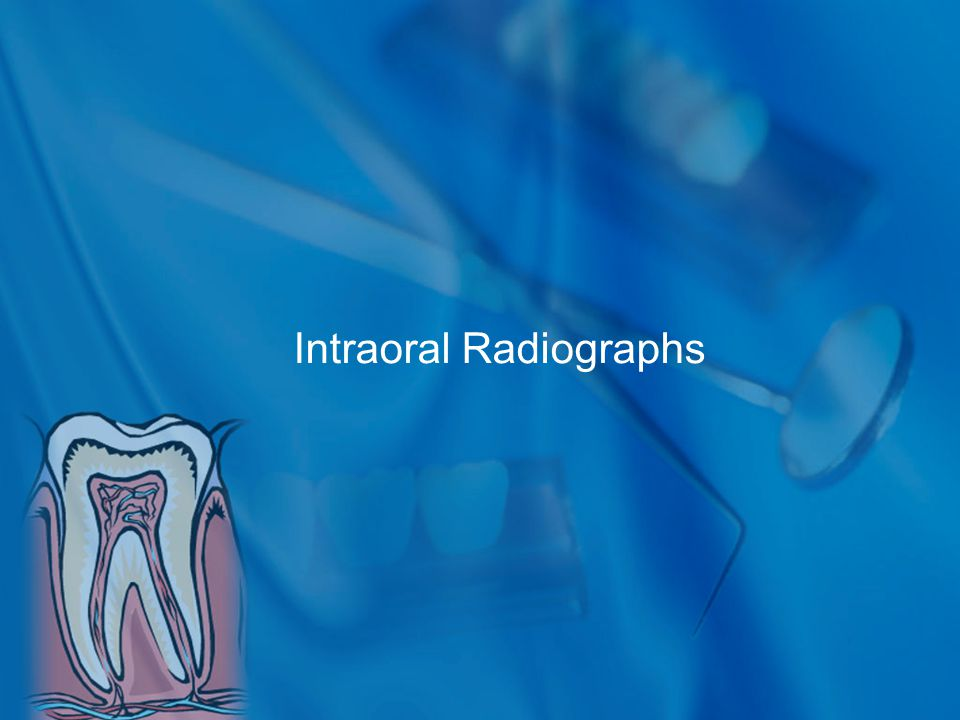Intraoral Radiographs