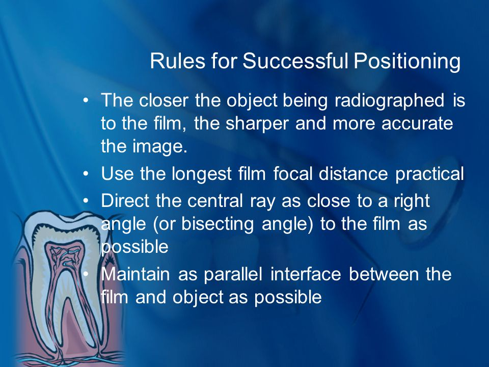 Rules for Successful Positioning