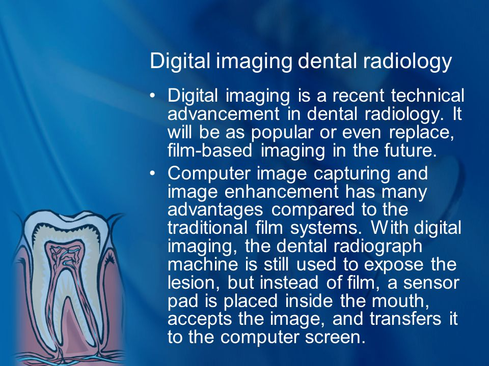 Digital imaging dental radiology