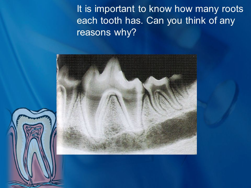 It is important to know how many roots each tooth has