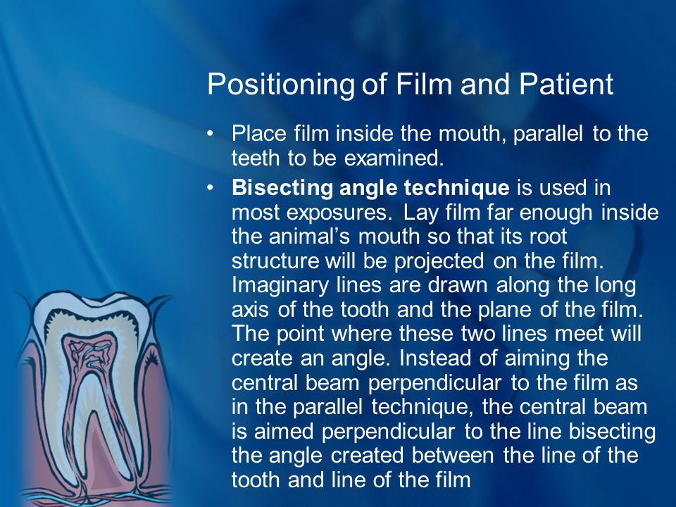 Positioning of Film and Patient