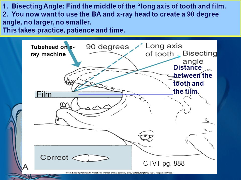 Bisecting Angle: Find the middle of the long axis of tooth and film.