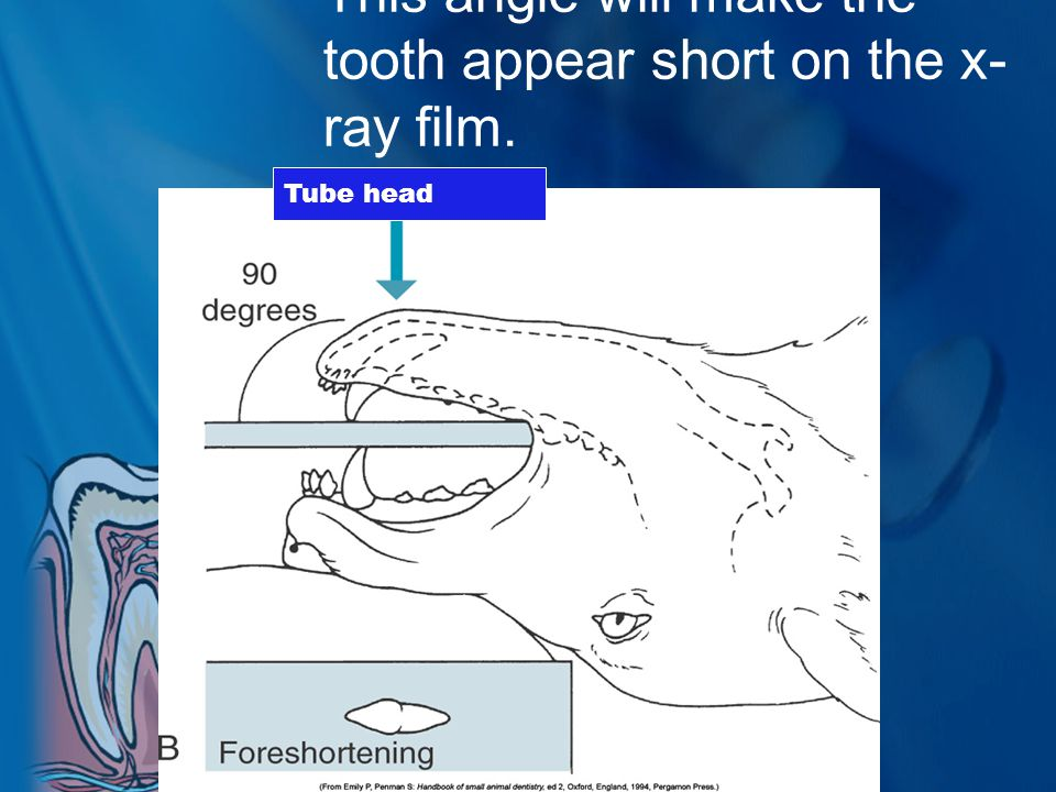 This angle will make the tooth appear short on the x-ray film.