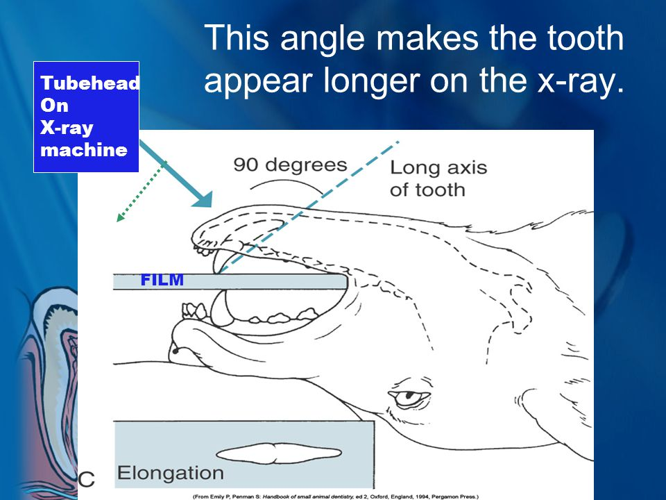 This angle makes the tooth appear longer on the x-ray.