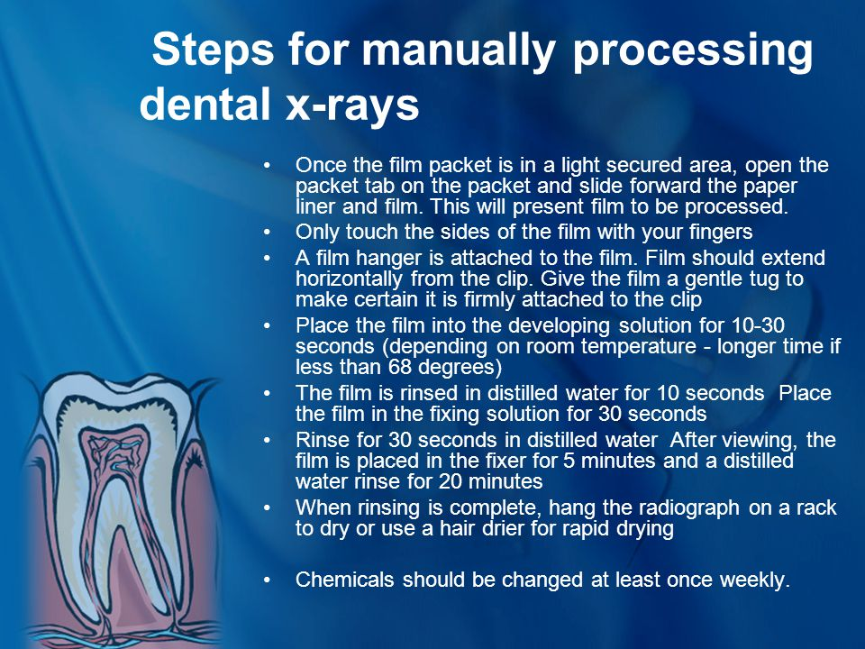 Steps for manually processing dental x-rays