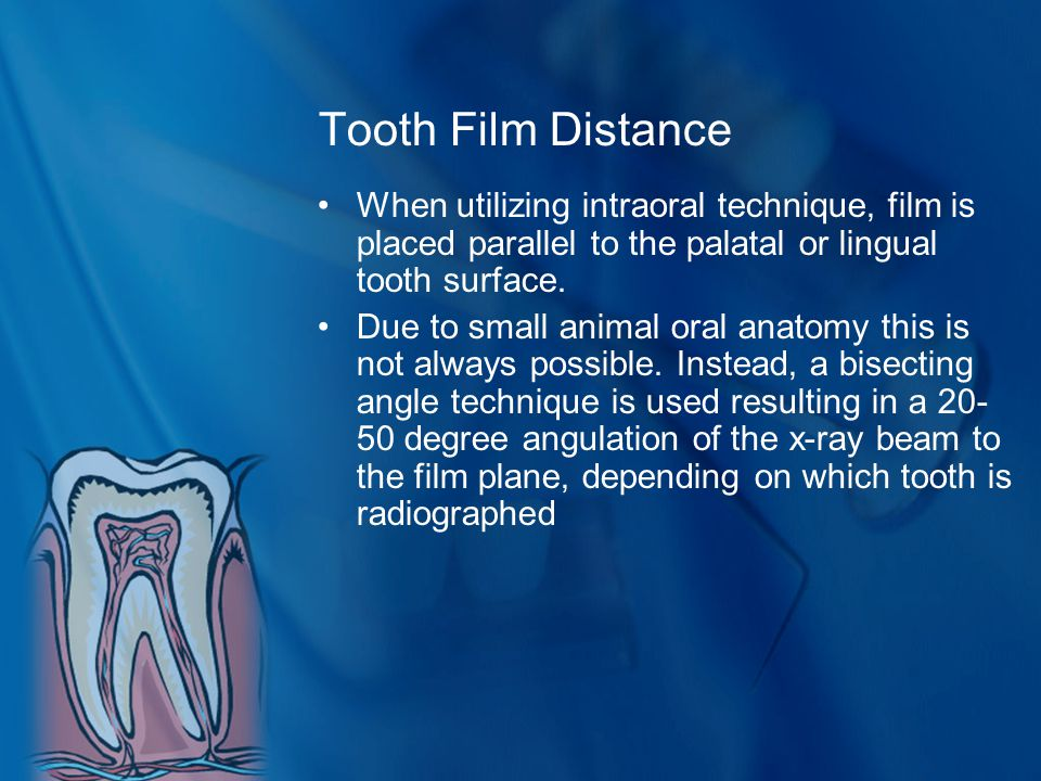 Tooth Film Distance When utilizing intraoral technique, film is placed parallel to the palatal or lingual tooth surface.