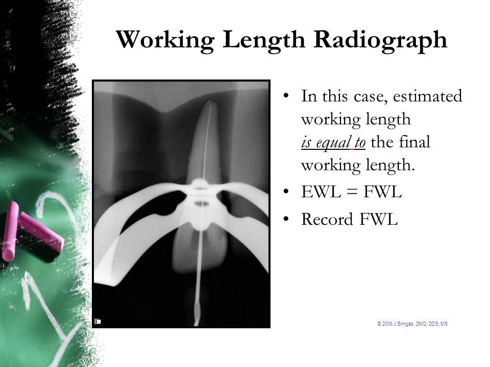 Working Length Radiograph