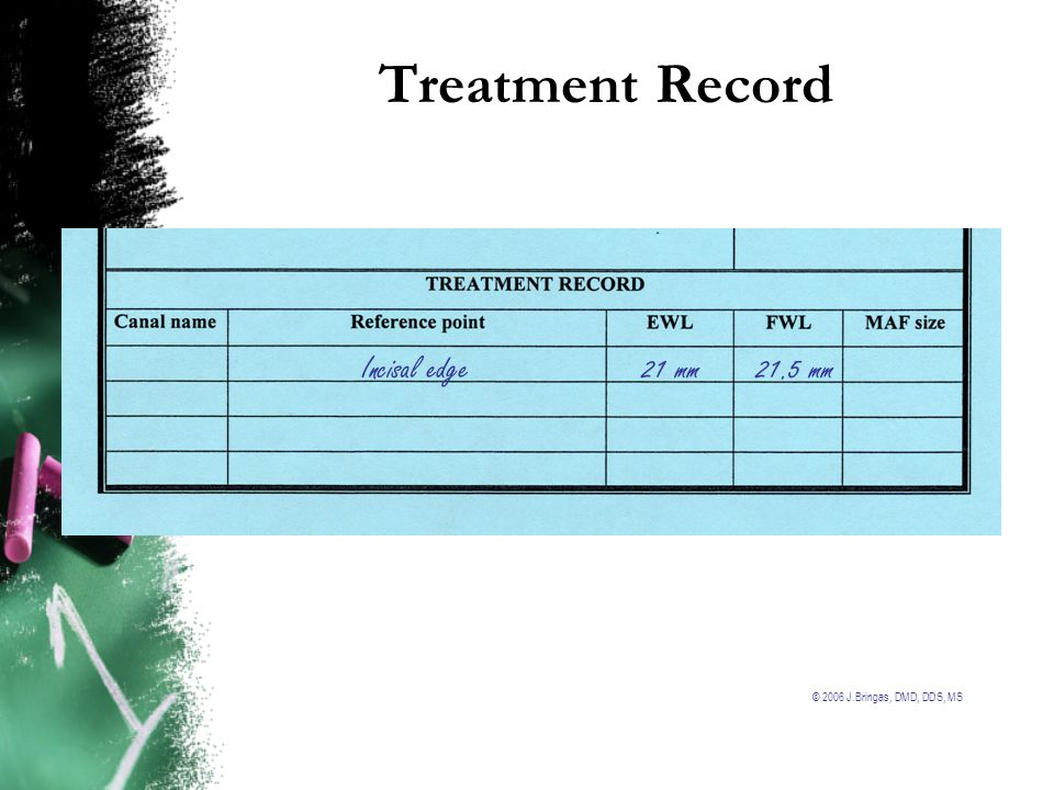 Treatment Record Incisal edge 21 mm 21.5 mm