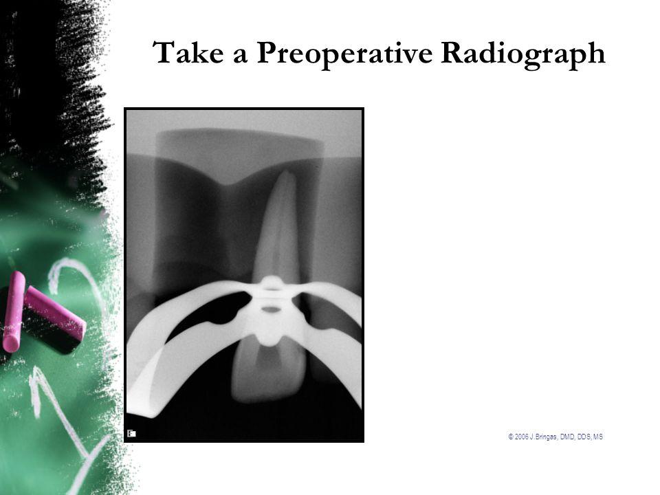 Take a Preoperative Radiograph