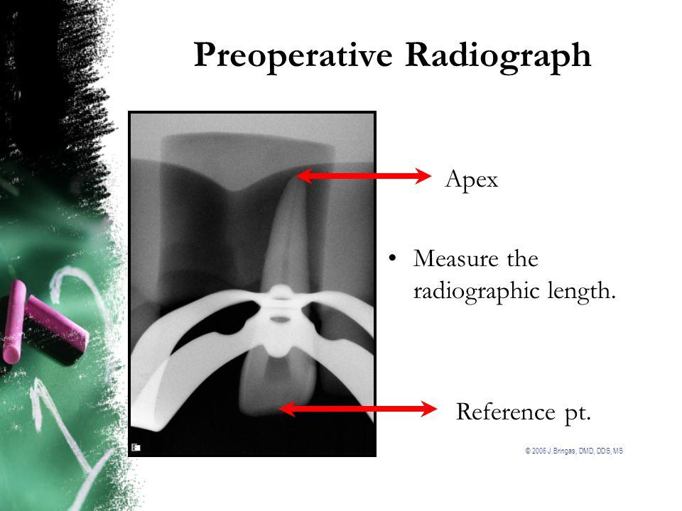 Preoperative Radiograph