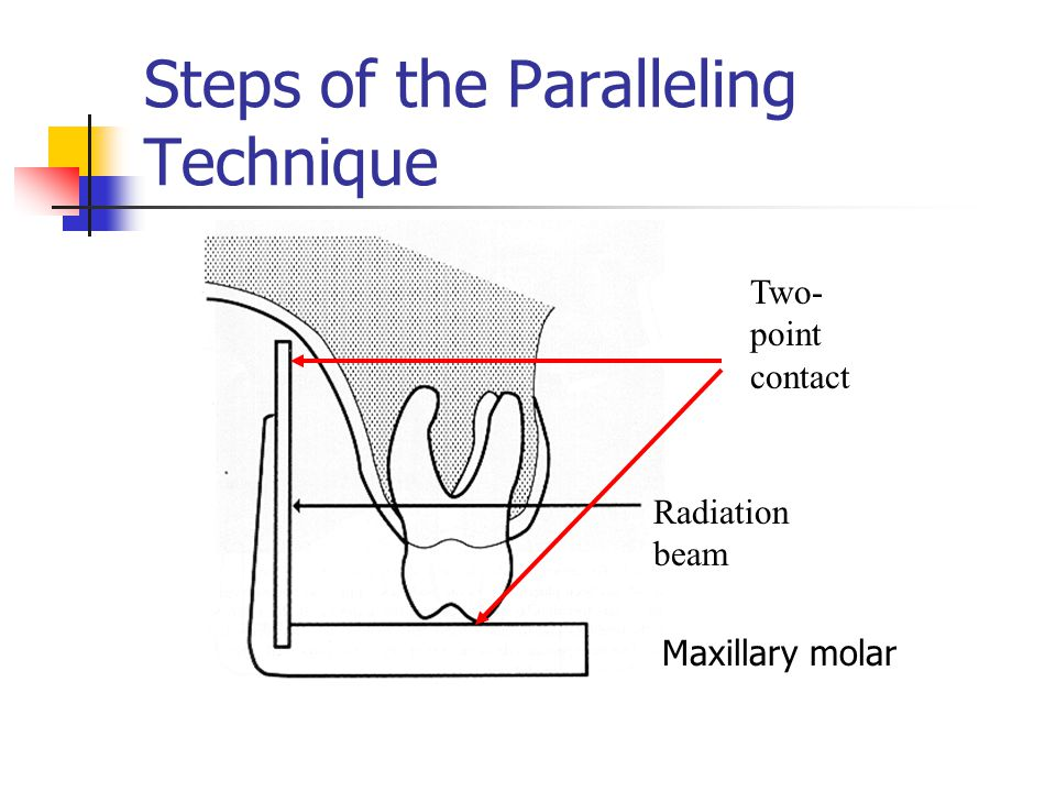 Steps of the Paralleling Technique