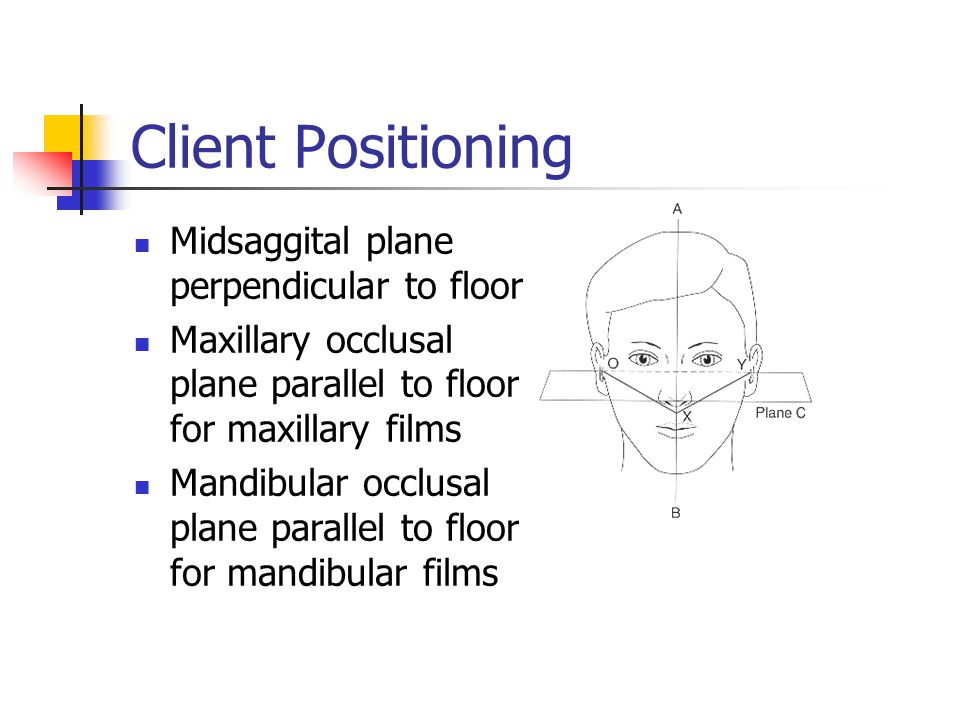 Client Positioning Midsaggital plane perpendicular to floor