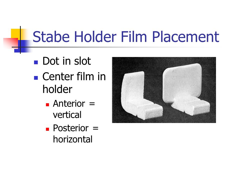 Stabe Holder Film Placement