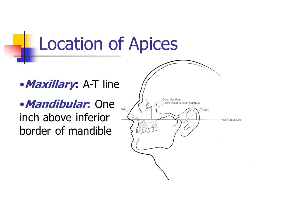 Location of Apices Maxillary: A-T line