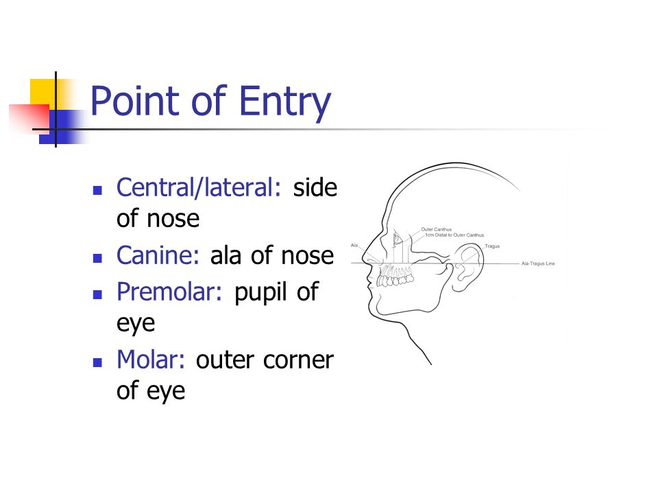 Point of Entry Central/lateral: side of nose Canine: ala of nose