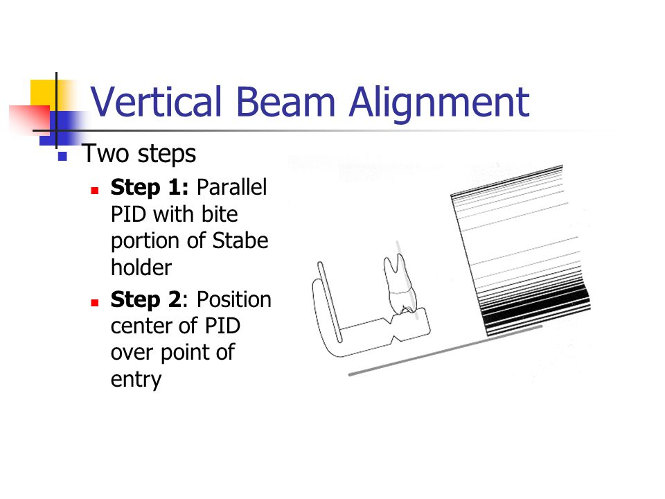 Vertical Beam Alignment
