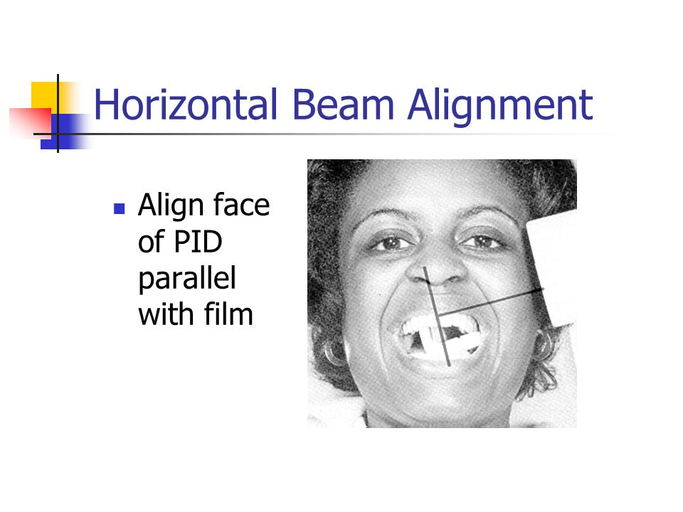 Horizontal Beam Alignment