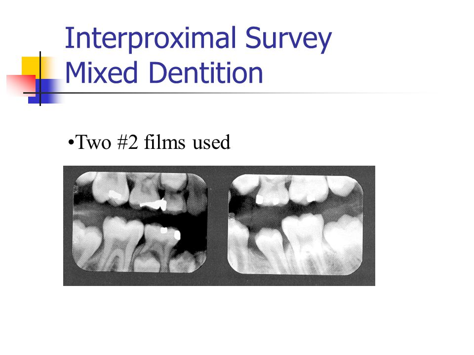 Interproximal Survey Mixed Dentition