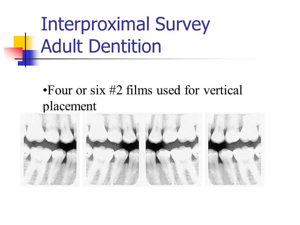 Interproximal Survey Adult Dentition