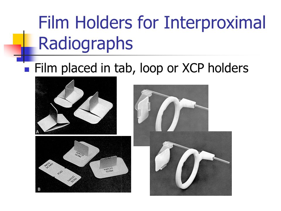 Film Holders for Interproximal Radiographs