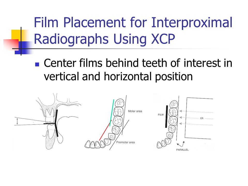 Film Placement for Interproximal Radiographs Using XCP