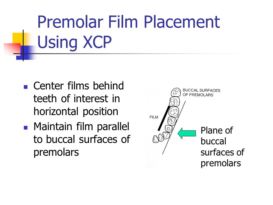 Premolar Film Placement Using XCP