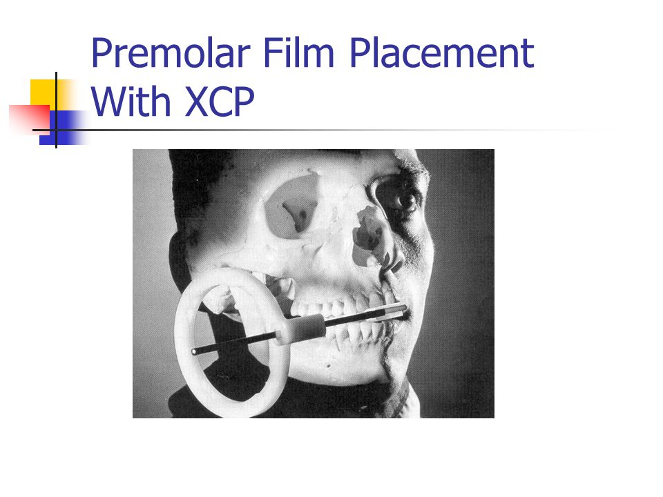 Premolar Film Placement With XCP
