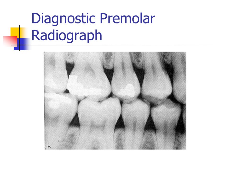 Diagnostic Premolar Radiograph