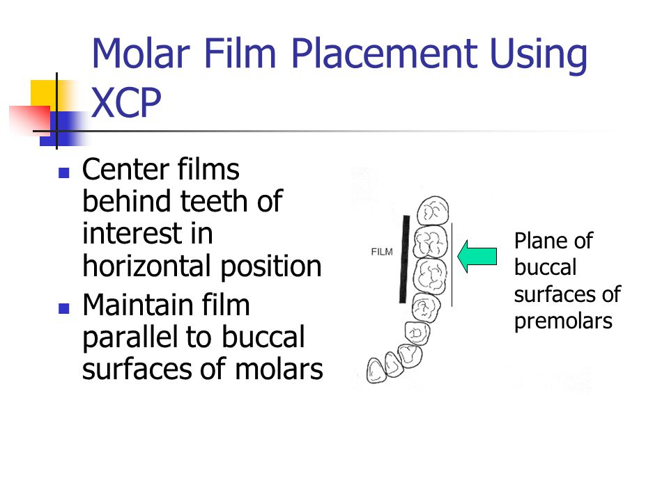 Molar Film Placement Using XCP