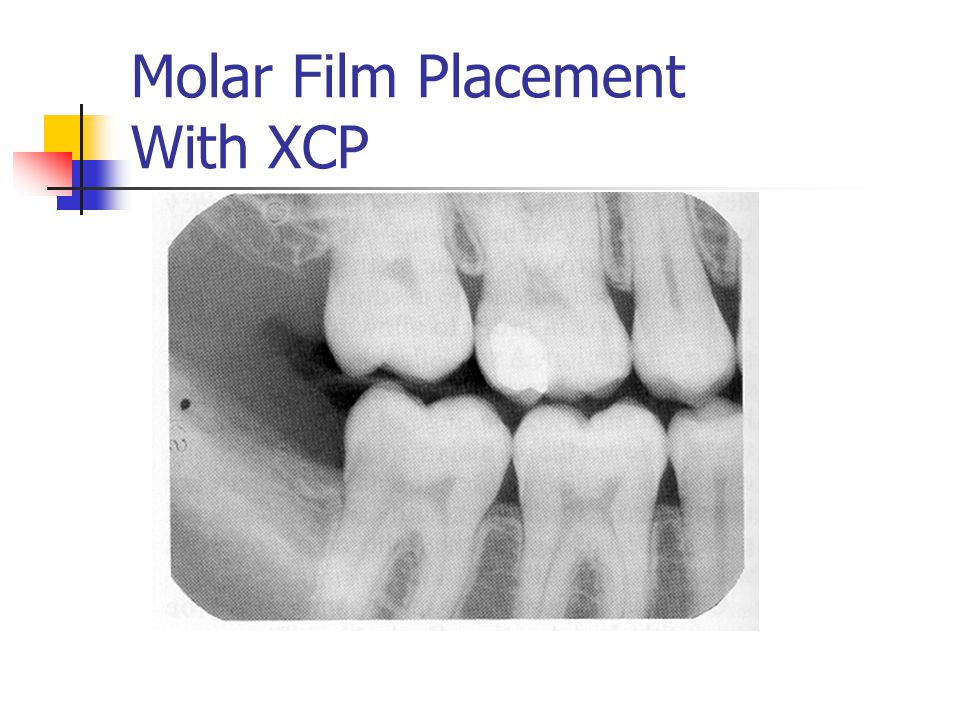 Molar Film Placement With XCP