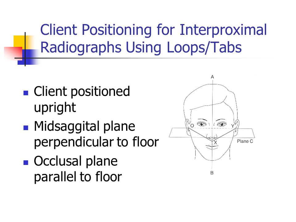 Client Positioning for Interproximal Radiographs Using Loops/Tabs